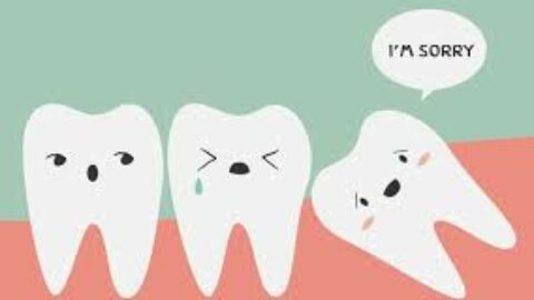 Dr. Fanous' Wisdom Teeth Removal Tips